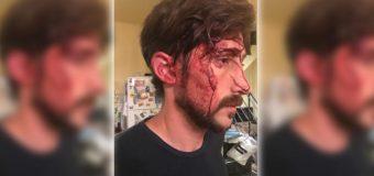 CONADU repudia el ataque al concejal Hernán Letcher
